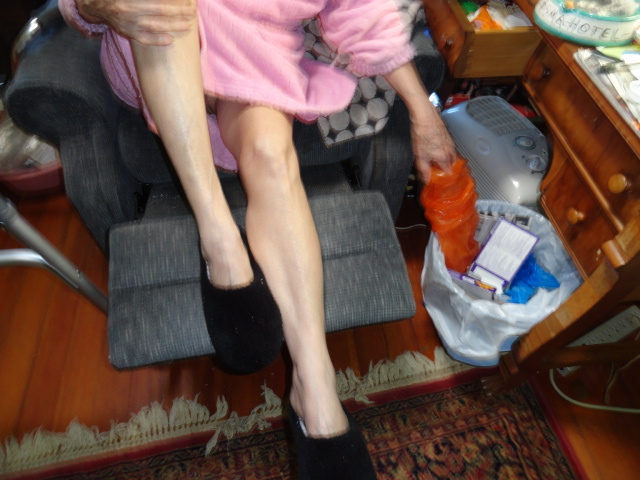 My mother, Gladys Katcher Bletter, was perfectly imperfect. But her legs were close to perfection. Here they were a few weeks before her death.